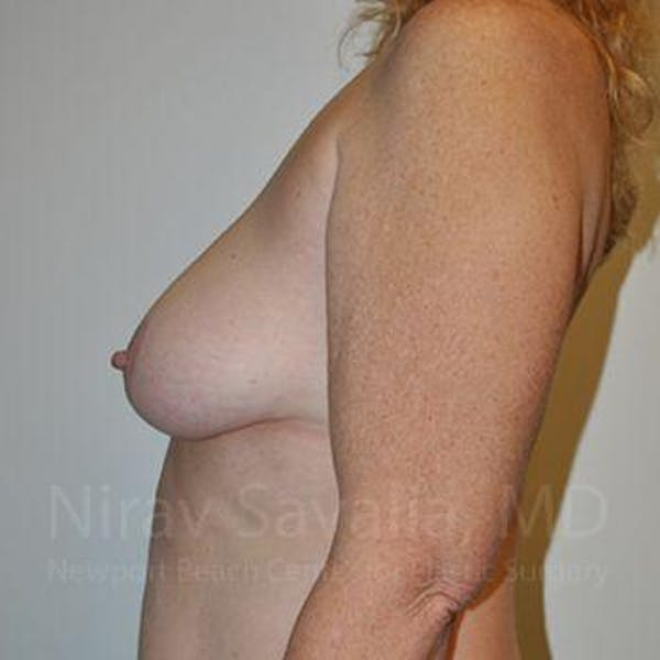 Breast Lift without Implants Gallery - Patient 1655446 - Image 11