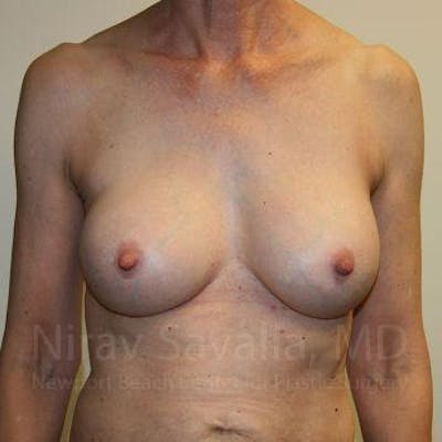 Breast Implant Revision Gallery - Patient 1655447 - Image 2