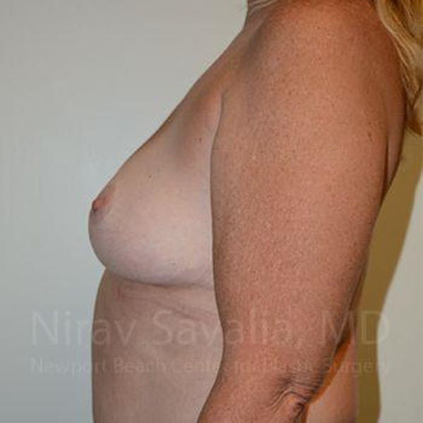 Breast Lift without Implants Gallery - Patient 1655446 - Image 12