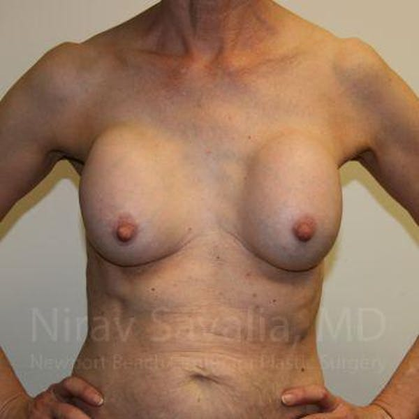 Breast Implant Revision Gallery - Patient 1655447 - Image 3