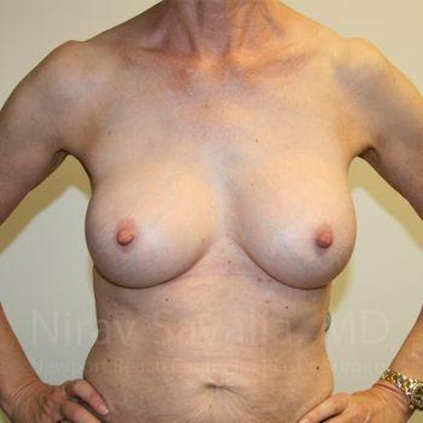 Breast Implant Revision Gallery - Patient 1655447 - Image 4