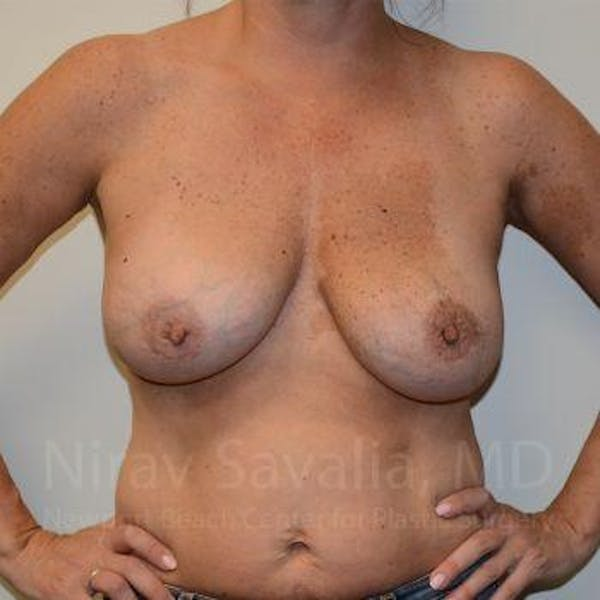 Breast Lift with Implants Gallery - Patient 1655449 - Image 1