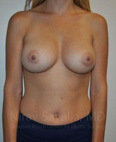 Breast Augmentation Gallery - Patient 1655448 - Image 2