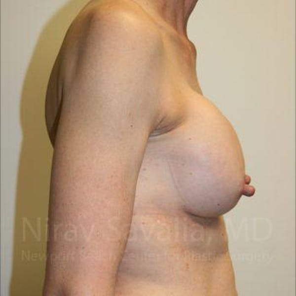 Breast Implant Revision Gallery - Patient 1655447 - Image 5