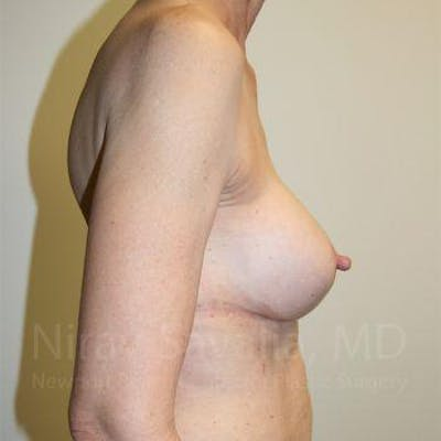 Breast Implant Revision Gallery - Patient 1655447 - Image 6