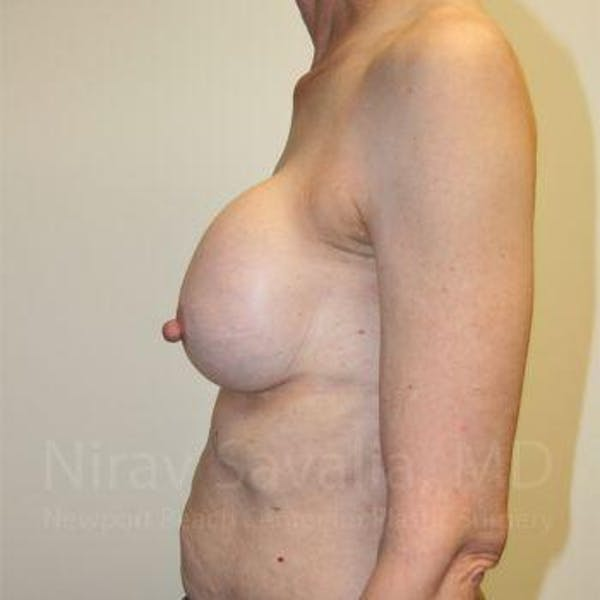 Breast Implant Revision Gallery - Patient 1655447 - Image 7