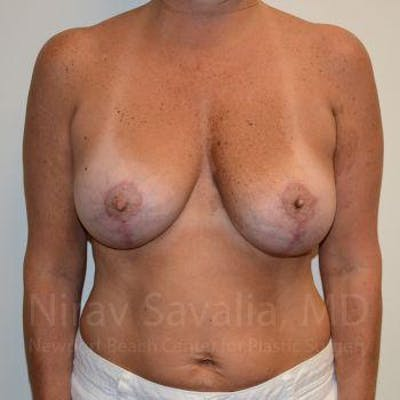 Breast Lift with Implants Gallery - Patient 1655449 - Image 4