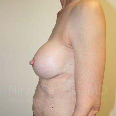Breast Implant Revision Gallery - Patient 1655447 - Image 8