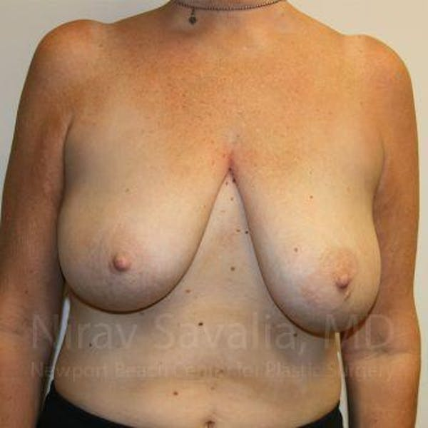 Breast Lift without Implants Gallery - Patient 1655450 - Image 1