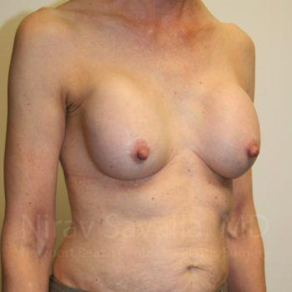 Breast Implant Revision Gallery - Patient 1655447 - Image 9