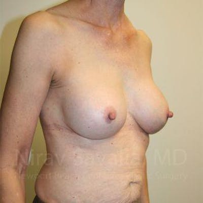 Breast Implant Revision Gallery - Patient 1655447 - Image 10