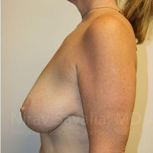 Breast Lift without Implants Gallery - Patient 1655450 - Image 3