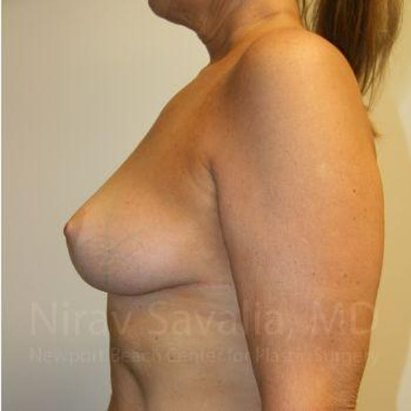 Breast Lift without Implants Gallery - Patient 1655450 - Image 4