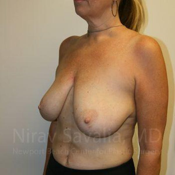 Breast Lift without Implants Gallery - Patient 1655450 - Image 5