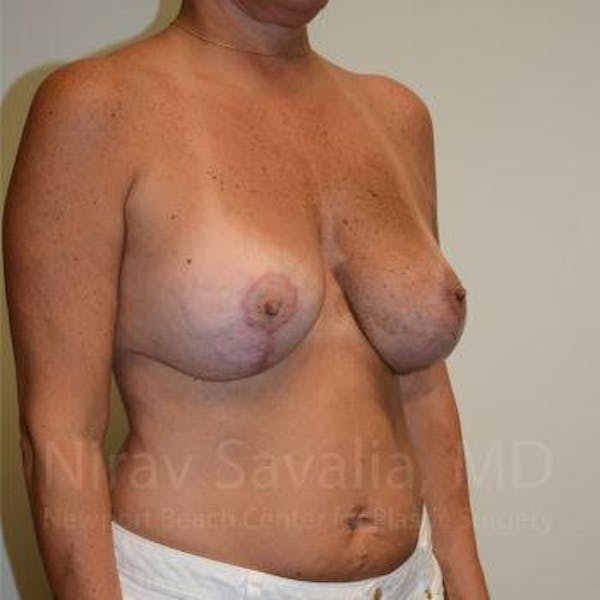 Breast Lift with Implants Gallery - Patient 1655449 - Image 10