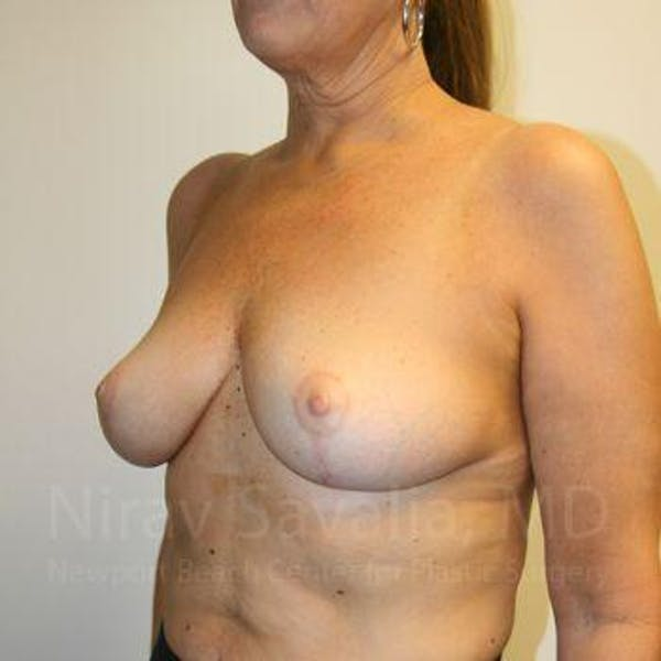 Breast Lift without Implants Gallery - Patient 1655450 - Image 6