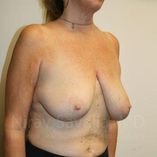 Breast Lift without Implants Gallery - Patient 1655450 - Image 7