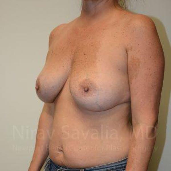 Breast Lift with Implants Gallery - Patient 1655449 - Image 11