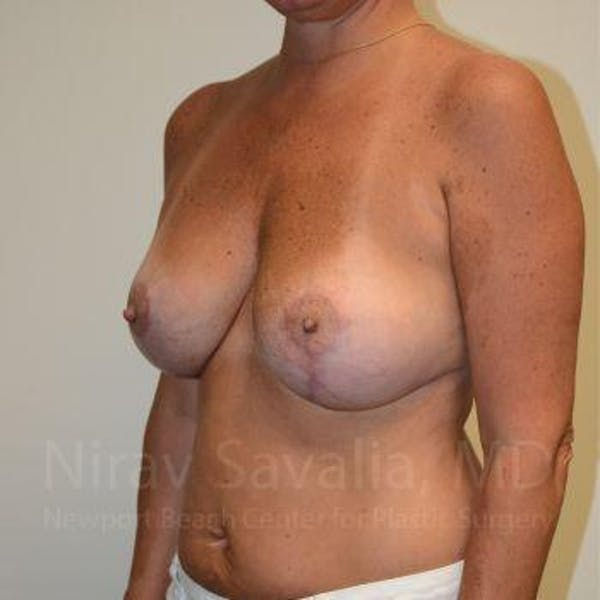 Breast Lift with Implants Gallery - Patient 1655449 - Image 12