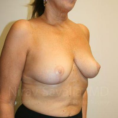 Breast Lift without Implants Gallery - Patient 1655450 - Image 8