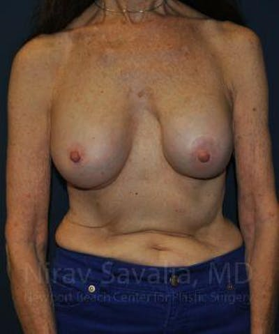 Breast Implant Revision Gallery - Patient 1655452 - Image 1