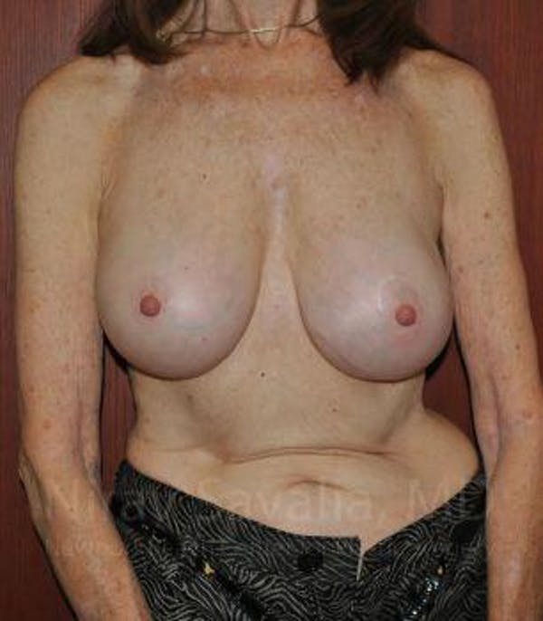 Breast Implant Revision Gallery - Patient 1655452 - Image 2