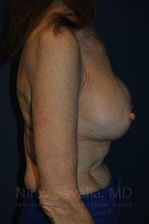 Breast Implant Revision Gallery - Patient 1655452 - Image 3