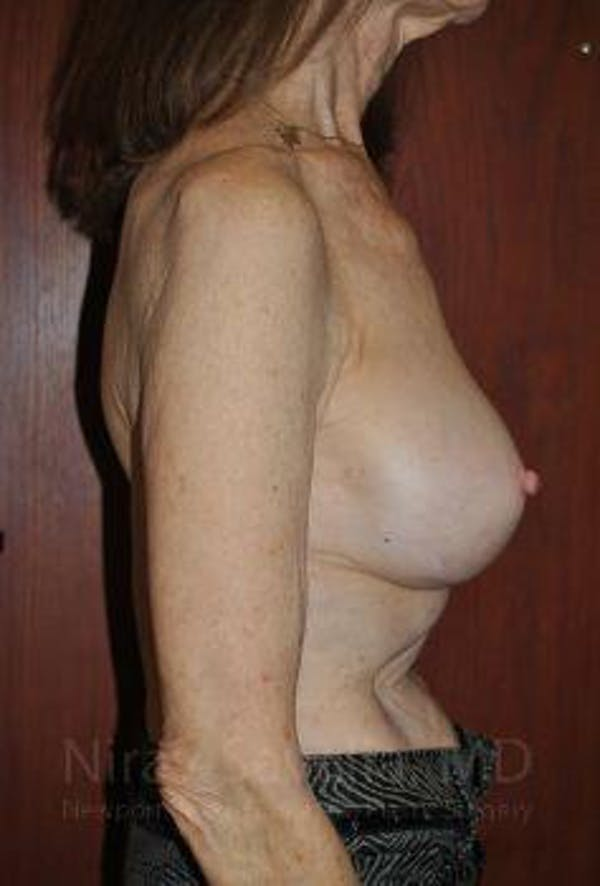 Breast Implant Revision Gallery - Patient 1655452 - Image 4