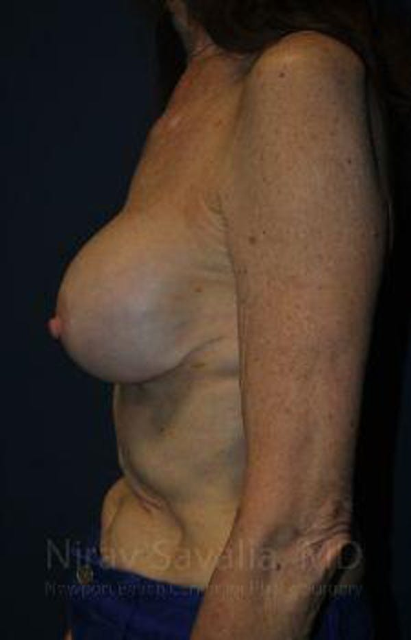 Breast Implant Revision Gallery - Patient 1655452 - Image 5