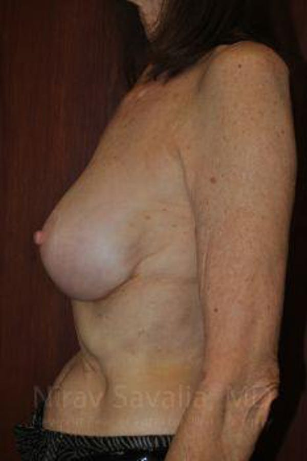 Breast Implant Revision Gallery - Patient 1655452 - Image 6