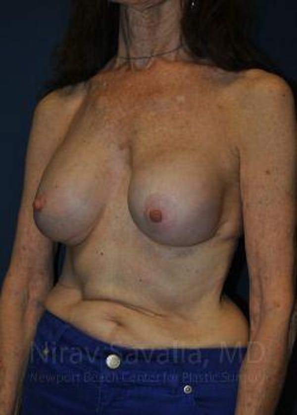 Breast Implant Revision Gallery - Patient 1655452 - Image 7