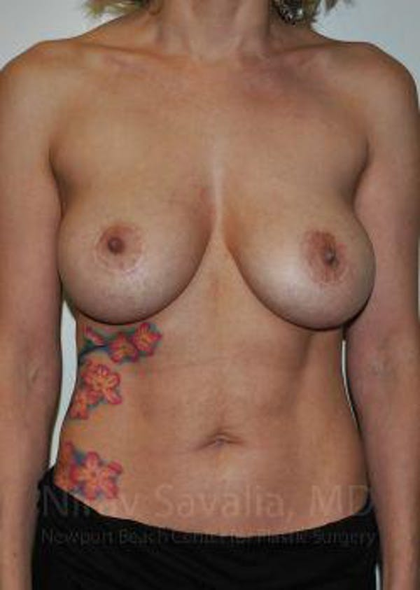 Breast Lift with Implants Gallery - Patient 1655455 - Image 1