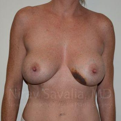 Breast Explantation / En Bloc Capsulectomy Gallery - Patient 1655456 - Image 1