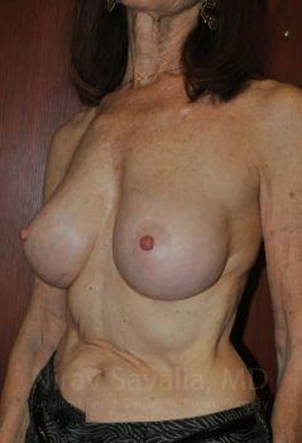 Breast Implant Revision Gallery - Patient 1655452 - Image 8