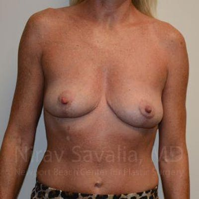 Breast Explantation / En Bloc Capsulectomy Gallery - Patient 1655456 - Image 2