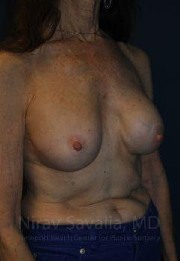 Breast Implant Revision Gallery - Patient 1655452 - Image 9