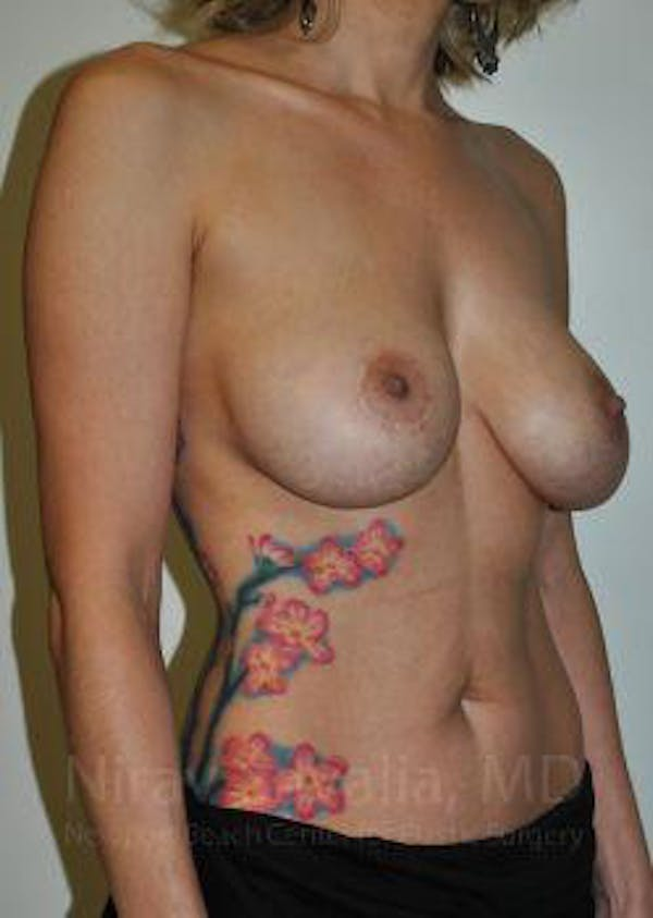 Breast Lift with Implants Gallery - Patient 1655455 - Image 3