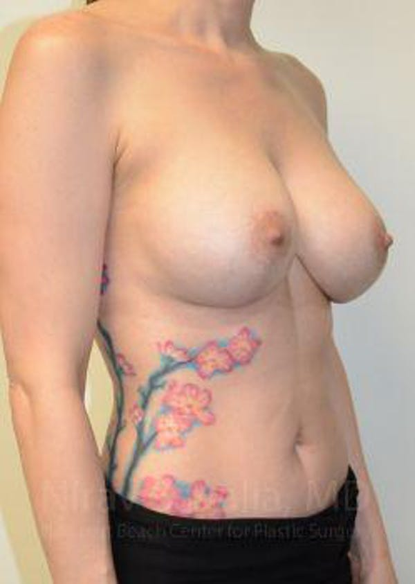 Breast Lift with Implants Gallery - Patient 1655455 - Image 4