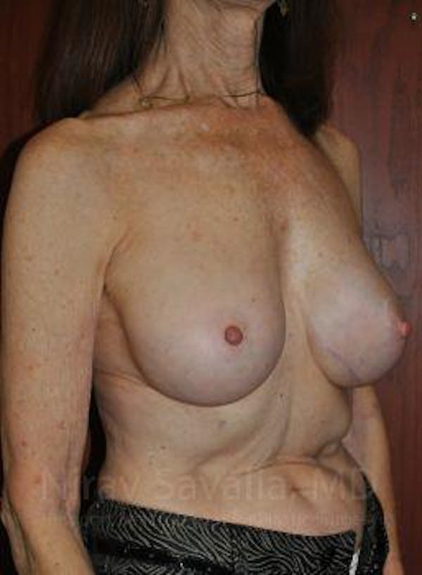 Breast Implant Revision Gallery - Patient 1655452 - Image 10