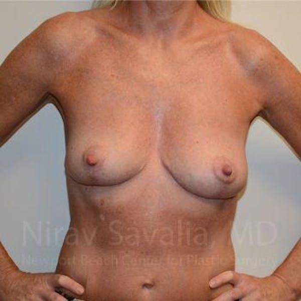 Breast Explantation / En Bloc Capsulectomy Gallery - Patient 1655456 - Image 4