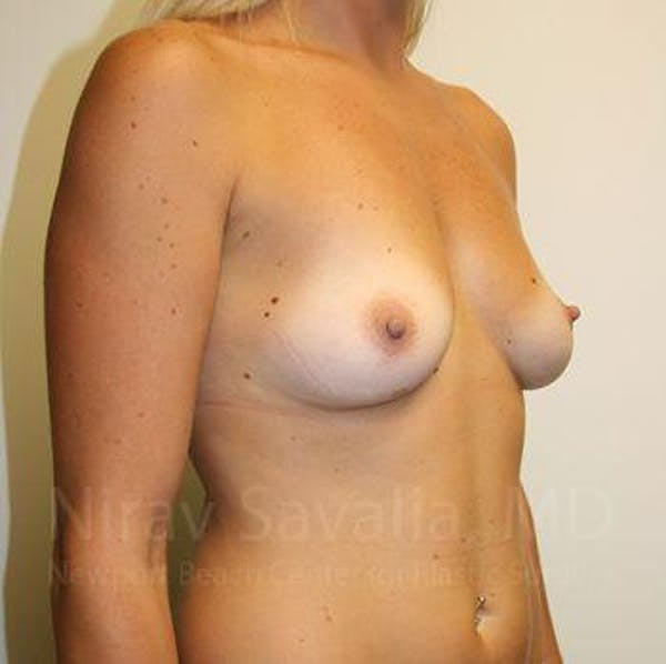 Breast Augmentation Gallery - Patient 1655453 - Image 7