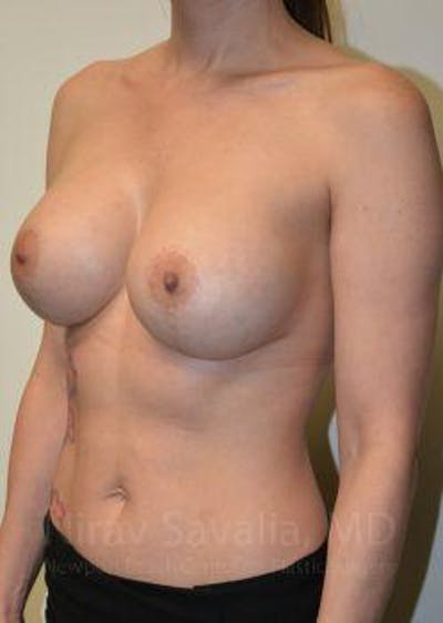 Breast Lift with Implants Gallery - Patient 1655455 - Image 6