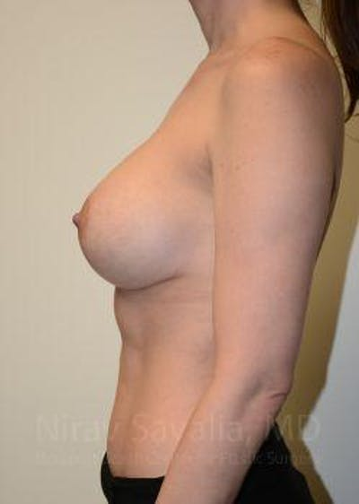 Breast Lift with Implants Gallery - Patient 1655455 - Image 8