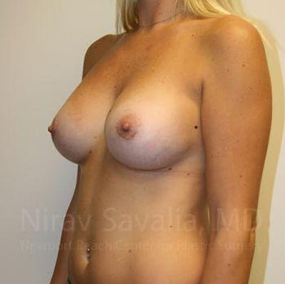 Breast Augmentation Gallery - Patient 1655453 - Image 10