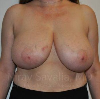Breast Reduction Gallery - Patient 1655461 - Image 1