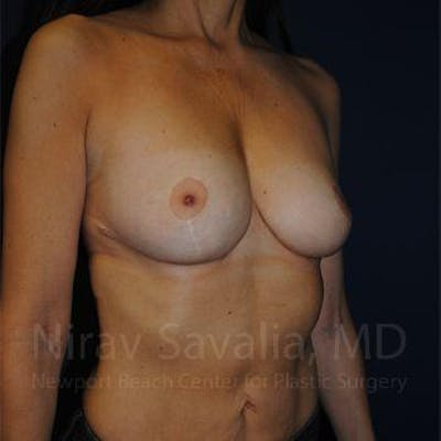 Breast Lift without Implants Gallery - Patient 1655454 - Image 8
