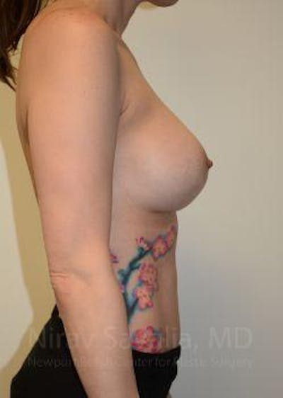 Breast Lift with Implants Gallery - Patient 1655455 - Image 10