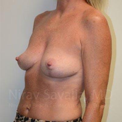Breast Explantation / En Bloc Capsulectomy Gallery - Patient 1655456 - Image 10