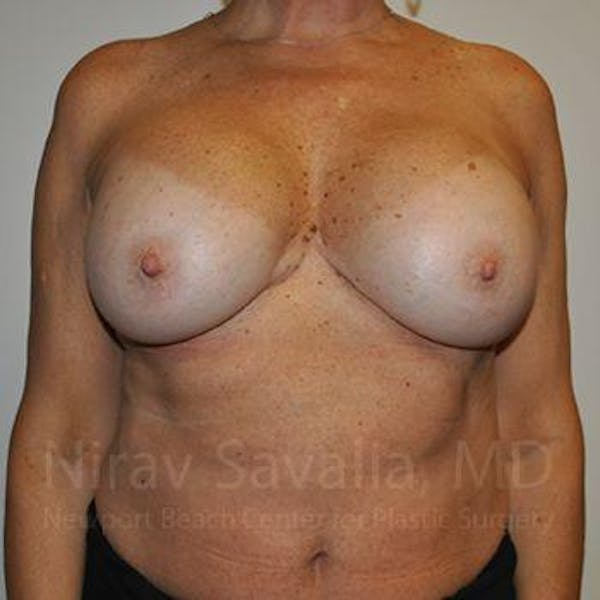 Breast Implant Revision Gallery - Patient 1655463 - Image 1