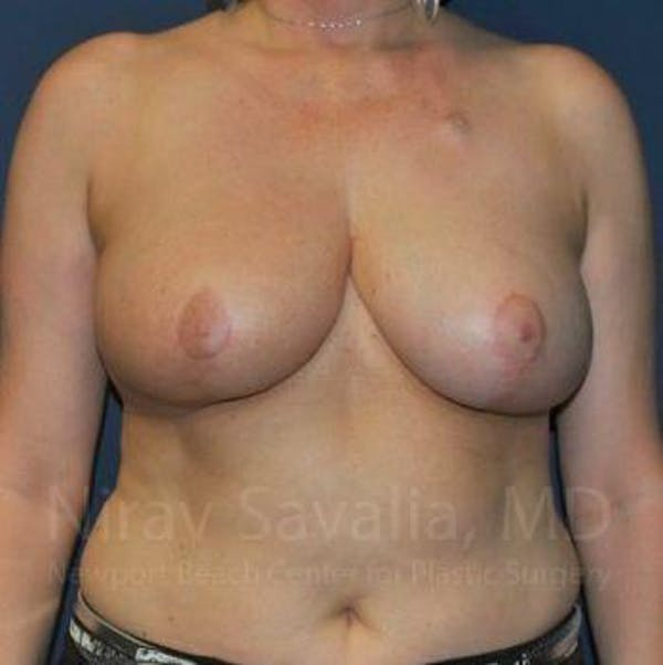 Breast Reduction Gallery - Patient 1655461 - Image 4